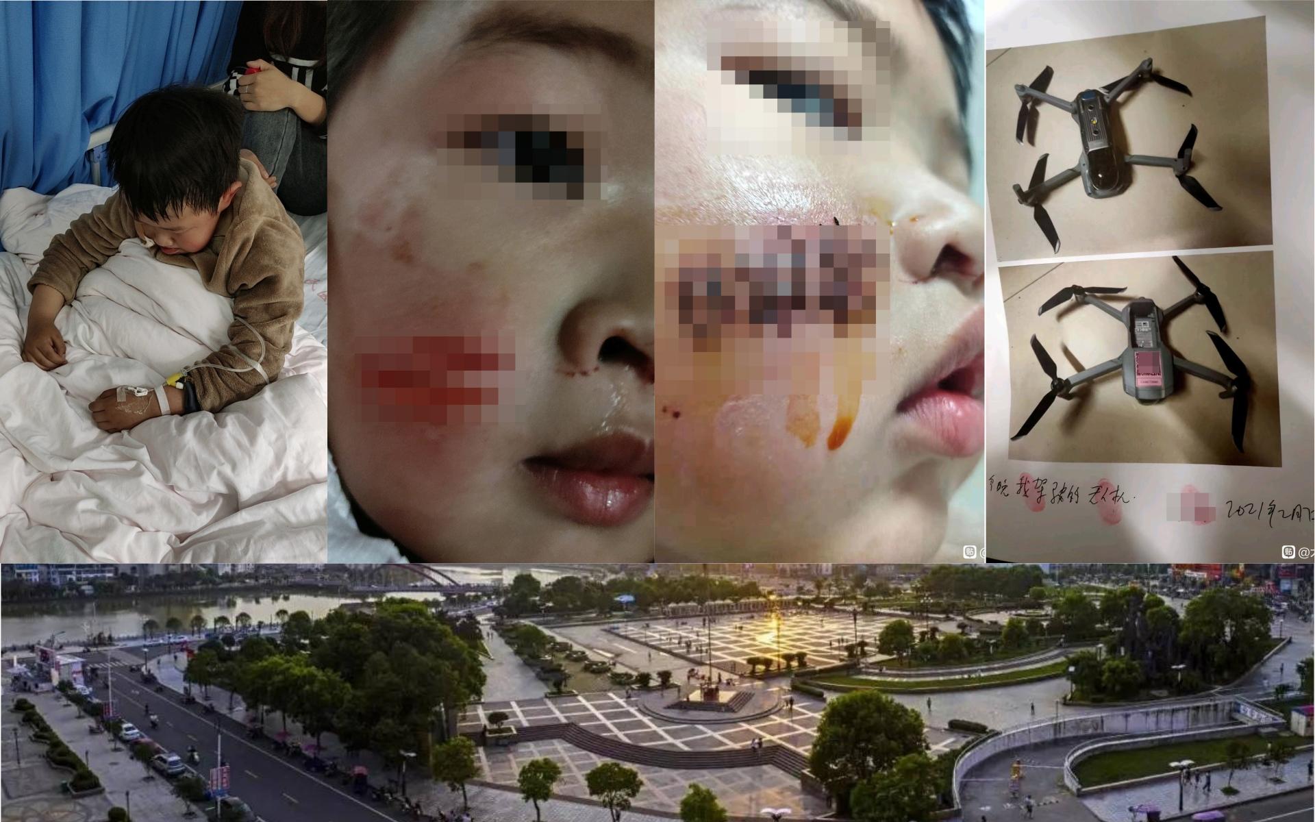 5 歲童江西一廣場內被無人機「割臉」毀容 涉事飛手持職業資格證書